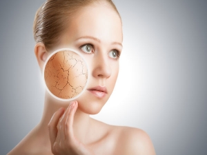Do You Have Dry Skin Here Are Some Remedies Follow