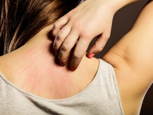 Deadly Diseases Your Itchy Skin Is Trying Warn You About