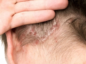 Treat Scalp Scabs With These Remedies