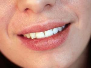 Ways To Lighten Dark Lips Using Lime
