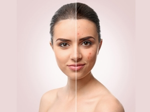 Home Remedies For Facial Scars