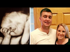 Parents Refused To Abort Deformed Baby