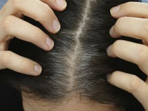 Premature White Hair Children Causes Home Remedies