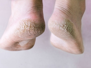 Desi Remedies For Cracked Heels During Winters