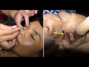 All About The Eye Washing Master