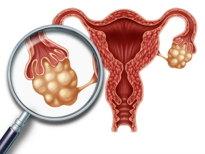 Ayurvedic Cure For Ovarian Cyst