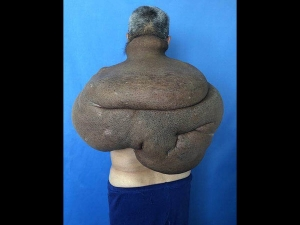 A Cancerous Tumour Engulfed His Back