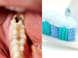 Tooth Infection In Kids And Know The Prevention Methods