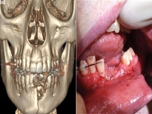 Vape Pen Explodes Damages Teen S Teeth