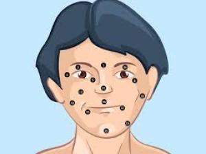 Ayurvedic Treatment For Moles