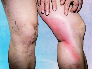 Phlebitis Causes Symptoms Diagnosis Treatment
