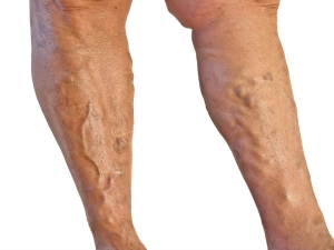 Varicose Veins Treatment Causes Symptoms And Prevention