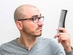 These Things Will Make You Bald How To Reduse Hair Loss