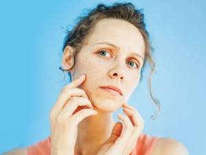 What Is Windburn Treatment And Prevention