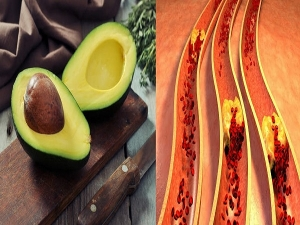 One Avocado A Day Could Lower Bad Cholesterol New Study