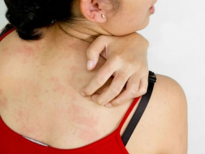 Strange Skin Problems Could Be Sign Of A Serious Disease