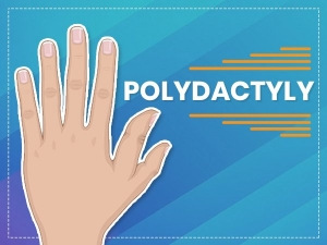 Polydactyly 6 Fingers Causes Symptoms And Treatment