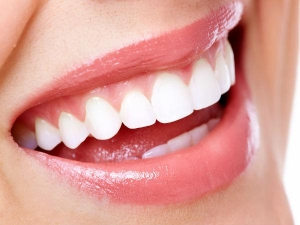 Home Remedies To Get Rid From Yellow Teeth