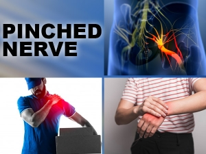 Pinched Nerve In The Neck Causes Symptoms And Treatment