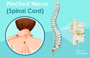 Home Remedies For Pinched Nerve In Neck