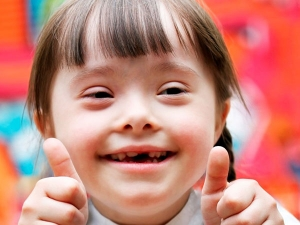 What Is The Reasons For Down Syndrome In Babies