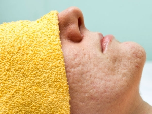The 5 Major Reasons That You Have Large Pores