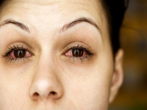 Itchy Eyes Home Remedies And Prevention Tips