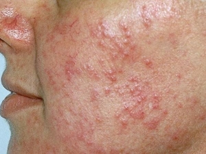 Home Remedies For Rosacea On Face