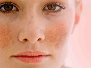 How To Do Pigmentation Treatment At Home