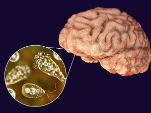 Brain Eating Amoeba Now Spreading Faster In Us All You Need To Know About Deadly Disease In Kannada