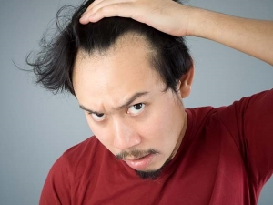 Things Every Man Should Know When They Start Experiencing Hair Loss For The First Time