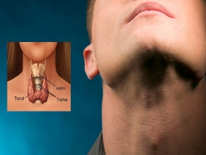 In Utero Exposures Associated With Increased Risk Of Thyroid Cancer