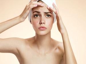 Amazing Anti Acne Drinks To Achieve Glowing Skin In Kannada