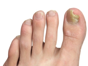 Why You Shouldn T Use Bleach To Get Rid Of Toenail Fungus In Kannada