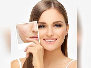 Makeup Tips For Acne Prone Skin In Kannada