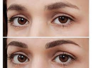 Common Eyebrow Issues And How To Fix Them Easily In Kannada
